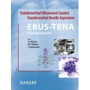 Endobronchial Ultrasound-Guided Transbronchial Needle Aspiration (EBUS-TBNA): A Practical Approach by Sara Monaco
