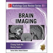 Radiology Case Review Series: Brain Imaging by Chang Ho