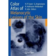 Color Atlas of Melanocytic Lesions of the Skin by H. Peter Soyer