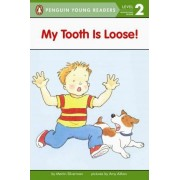 My Tooth is Loose! by Martin Silverman