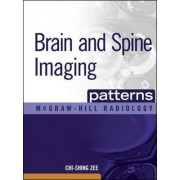 Brain and Spine Imaging Patterns by Chi-Shing Zee