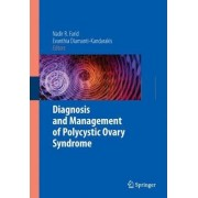Diagnosis and Management of Polycystic Ovary Syndrome by Nadir R. Farid
