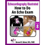 How to Do an Echo Exam by Bernard E Bulwer MD