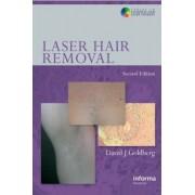 Laser Hair Removal by David J. Goldberg