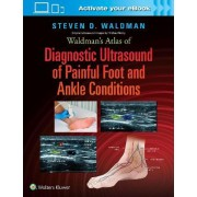 Waldman's Atlas of Diagnostic Ultrasound of Painful Foot and Ankle Conditions by Steven Waldman