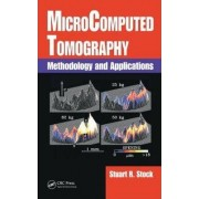 MicroComputed Tomography by Stuart R. Stock