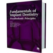 Fundamentals of Implant Dentistry: Prosthodontic Principles: 1 by John Beumer
