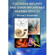 Cochlear Implants and Other Implantable Hearing Devices by Michael J. Ruckenstein