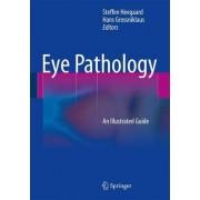 Eye Pathology by Steffen Heegaard