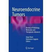 Neuroendocrine Tumors: Review of Pathology, Molecular and Therapeutic Advances 2016 by Aejaz Nasir