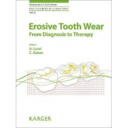 Erosive Tooth Wear: 'Dental Erosion - From Diagnosis to Therapy Vol. 20 by Adrian Lussi