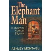 The Elephant Man by Ashley Montagu