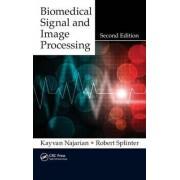 Biomedical Signal and Image Processing by Kayvan Najarian