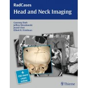 Radcases Head and Neck Imaging by Gaurang Vrindavan Shah
