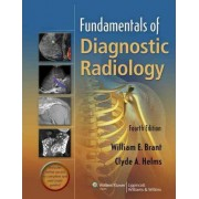 Fundamentals of Diagnostic Radiology - 4 Volume Set by William E. Brant