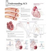 Understanding ACS (Acute Coronary Syndrome) Paper Poster by Scientific Publishing