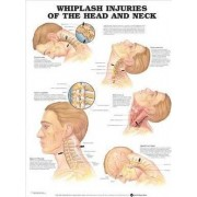 Whiplash Injuries of the Head and Neck Anatomical Chart by Anatomical Chart Company