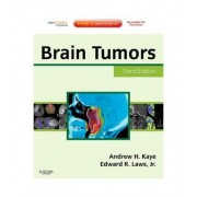 Brain Tumors by Andrew H Kaye