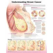 Understanding Breast Cancer by Anatomical Chart Company