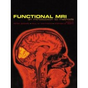 Functional Magnetic Resonance Imaging by Peter Jezzard