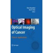 Optical Imaging of Cancer by Eben Rosenthal