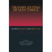Transplanting Human Tissue by Stuart J. Youngner