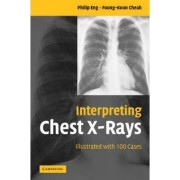Interpreting Chest X-Rays by Philip Eng