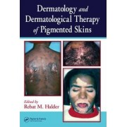 Dermatology and Dermatological Therapy of Pigmented Skins by Rebat Halder