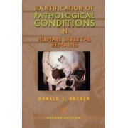 Identification of Pathological Conditions in Human Skeletal Remains by Donald J. Ortner