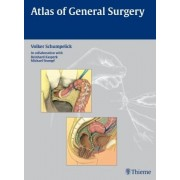 Atlas of General Surgery by Volker Schumpelick