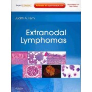 Extranodal Lymphomas by Judith A. Ferry
