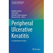 Peripheral Ulcerative Keratitis: A Comprehensive Guide