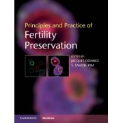 Principles and Practice of Fertility Preservation by Jacques Donnez