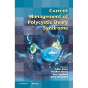 Current Management of Polycystic Ovary Syndrome by Adam H. Balen