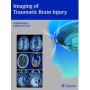 Imaging of Traumatic Brain Injury by Yoshimi Anzai