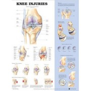 Knee Injuries Anatomical Chart by Anatomical Chart Company