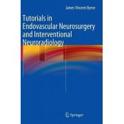 Tutorials in Endovascular Neurosurgery and Interventional Neuroradiology by James Vincent Byrne