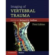 Imaging of Vertebral Trauma by Richard H. Daffner
