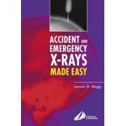 Accident and Emergency X-rays Made Easy, International Edition by Begg