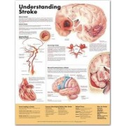 Understanding Stroke Anatomical Chart by Anatomical Chart Company