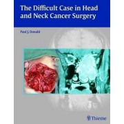 The Difficult Case in Head and Neck Cancer Surgery by Paul J. Donald
