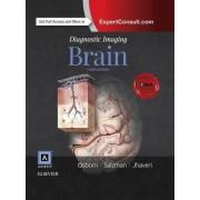Diagnostic Imaging: Brain by Anne G. Osborn