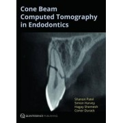 Cone Beam Computed Tomography in Endodontics by Shanon Patel