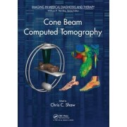 Cone Beam Computed Tomography by Chris C. Shaw