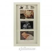 Rama foto bebelusi ecografie gravida