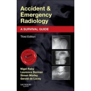 Accident and Emergency Radiology: A Survival Guide by Nigel Raby