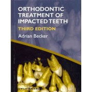 Orthodontic Treatment of Impacted Teeth by Adrian Becker