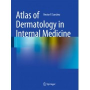 Atlas of Dermatology in Internal Medicine by Nestor P. Sanchez