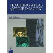 Teaching Atlas of Spine Imaging by Ruth G. Ramsey