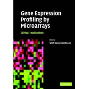 Gene Expression Profiling by Microarrays by Wolf Karsten Hofmann